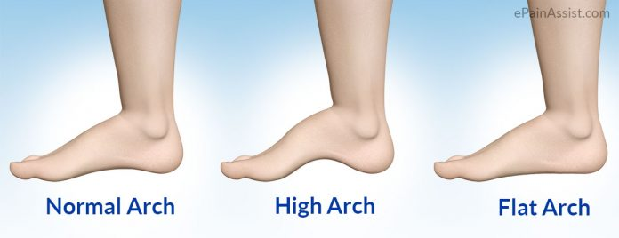 What is High Arch Feet